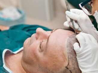 Your Guide to Hair Transplant Surgery in Turkey 2
